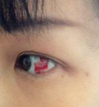 結膜下出血.JPG